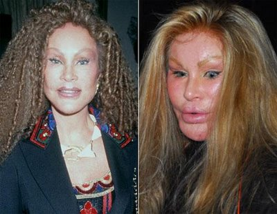 What is your opinion on plastic surgery? - Off-Topic ...